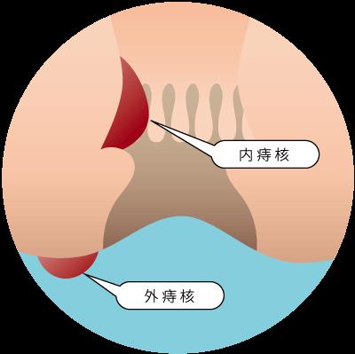 痔核(内痔核・外痔核)